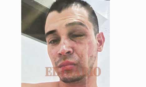 Ataque con supuesto 'ácido' en Cartago - El Diario de Otún